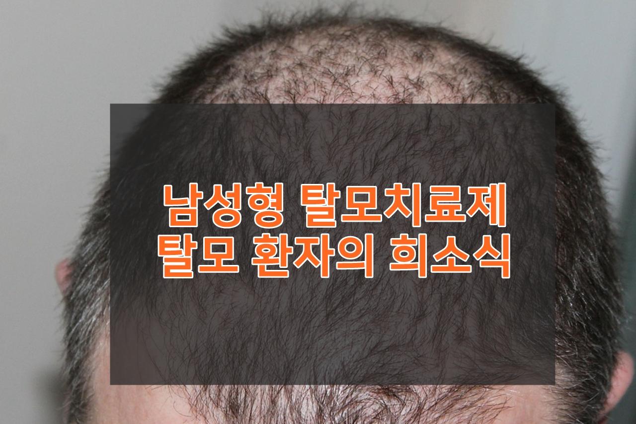 탈모치료 메디톡신-탈모치료제 소식
